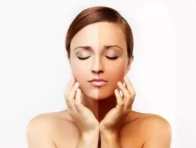 Skin Whitening Surgeries for Fairer Skin