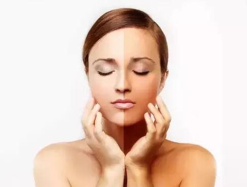 Skin Whitening Surgeries for Fairer Skin